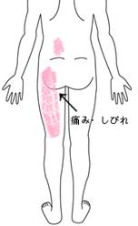 坐骨 神経痛 ロキソニン